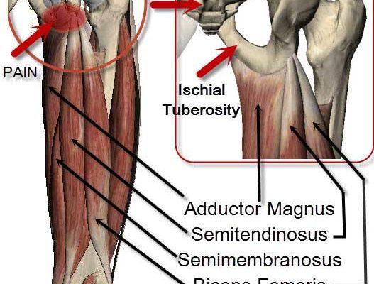 Hamstring attachements