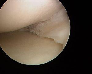 right menisc after_arthroscopy