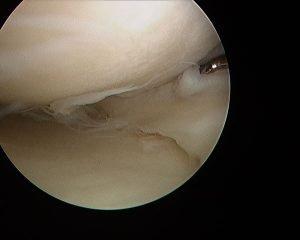 Right meniscus toren
